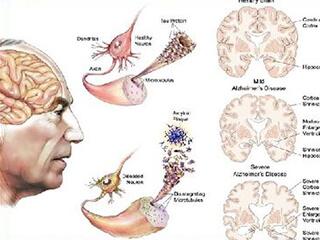Nutrition in motor neuron disease for Definition of motor neuron disease